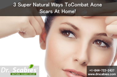 3 Super Natural Ways To Combat Acne Scars At Home!