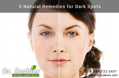 5 Natural Remedies for Dark Spots
