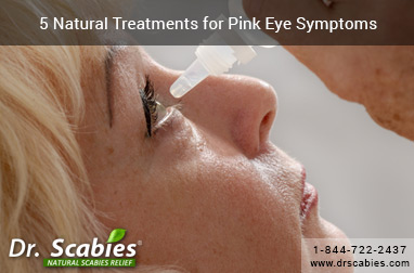 5 Natural Treatments for Pink Eye Symptoms