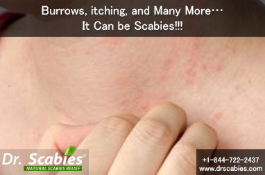 Burrows, itching, and Many More…It Can be Scabies!!!