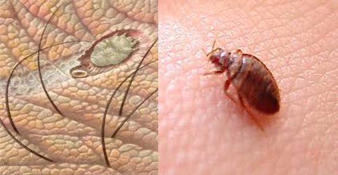 Can Bed Bugs Causes Scabies