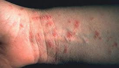 Can Scabies Kill or Really Make You Sick, If You Had Them From A Long Time?