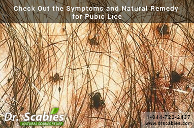 Check Out the Symptoms and Natural Remedy for Pubic Lice