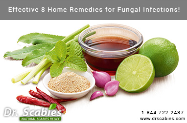 Effective 8 Home Remedies for Fungal Infections!