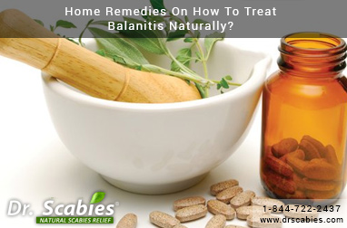Home Remedies On How To Treat Balanitis Naturally?