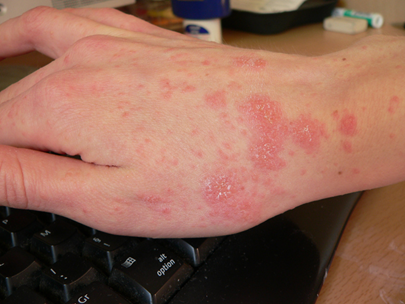 How Do I Prevent Scabies? I Recently Had A Scabies Exposed Visitor But No Symptoms on Myself Yet!