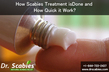 How Scabies Treatment is Done and How Quick it Work?