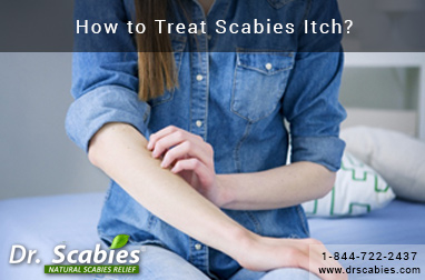 How to Treat Scabies Itch?