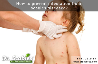 How to prevent infestation from scabies diseased?