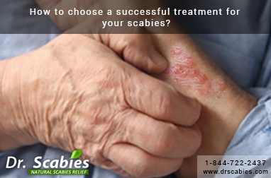 How to Choose a Successful Treatment for Your Scabies?