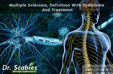 Multiple Sclerosis; Definition With Symptoms And Treatment