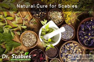 Natural Cure for Scabies
