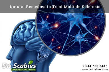 Natural Remedies to Treat Multiple Sclerosis