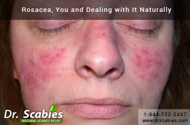Rosacea, You and Dealing with It Naturally