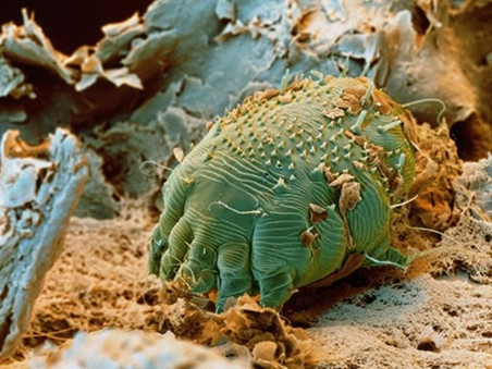 If Scabies is a pest, can I get infected from Scabies in my farms?