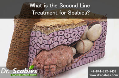 What is the Second Line Treatment for Scabies?