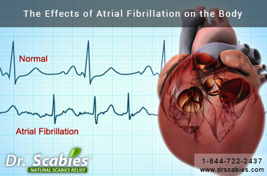 The Effects of Atrial Fibrillation on the Body