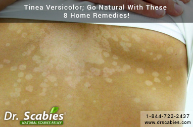 Tinea Versicolor; Go Natural With These 8 Home Remedies!