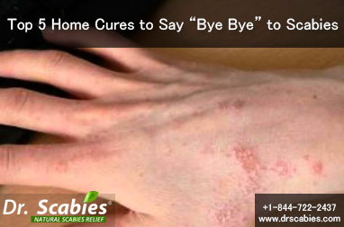 """Top 5 Home Cures to Say """"Bye Bye"""" to Scabies"""