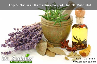 Top 5 Natural Remedies to Get Rid of Keloids!