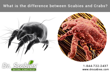 What is the Difference Between Scabies and Crabs?