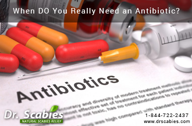 When DO You Really Need an Antibiotic?