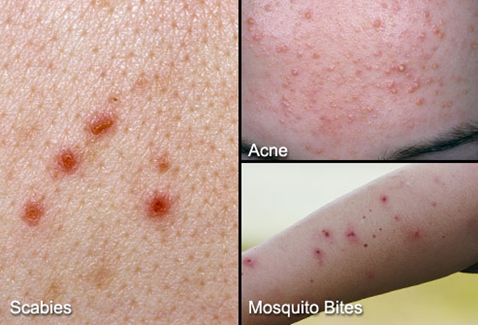 What are the symptoms of scabies
