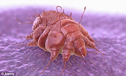 How Dr. Scabies Cream Works?