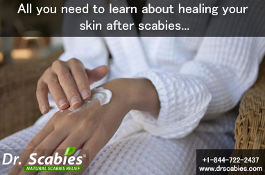 All you need to learn about healing your skin after scabies…