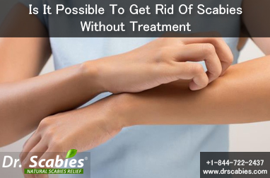 IS IT POSSIBLE TO GET RID OF SCABIES WITHOUT TREATMENT?