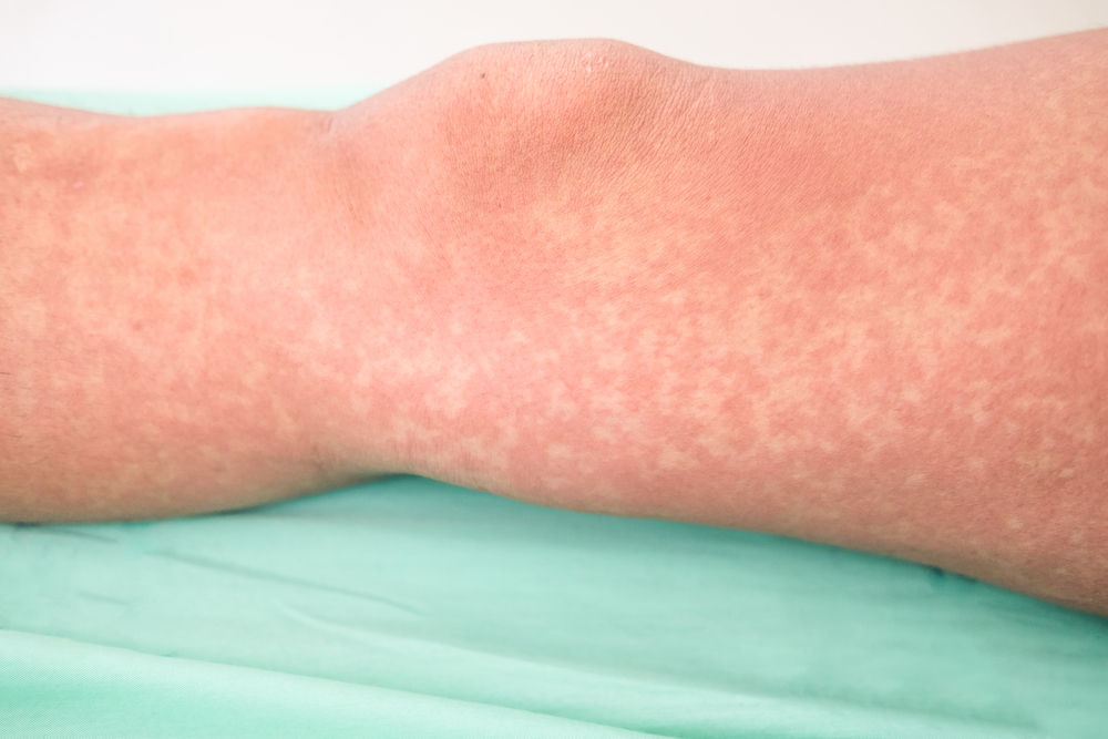 Natural Remedies for Viral Exanthema at Home - Drscabies