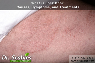 What is Jock Itch? Causes, Symptoms, and Treatments - Drscabies