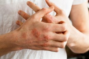 Emotional Impacts of Eczema