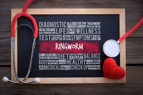 Ringworm text on board