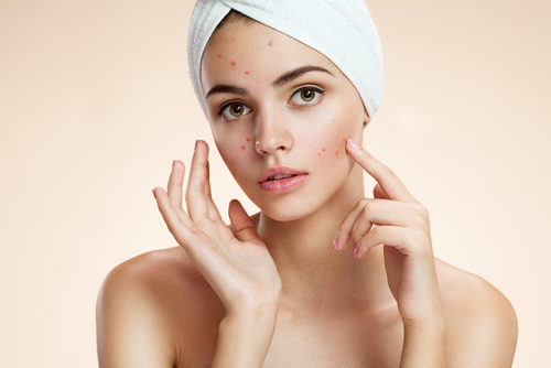 Scowling girl pointing at her acne with a towel on her head