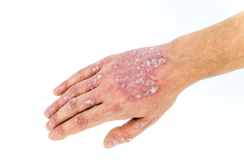 Psoriasis on hand