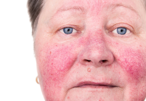 An elderly woman with skin rosacea condition