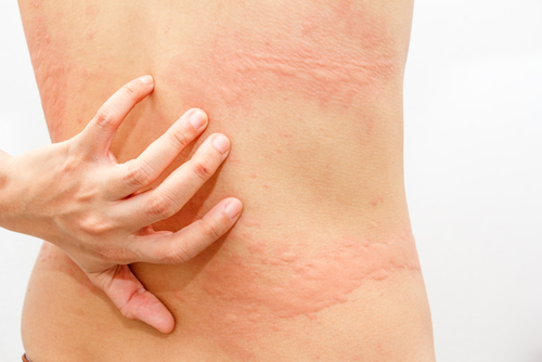 Women with symptoms of itchy urticaria