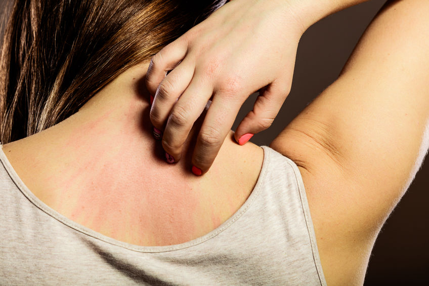 young woman scratching her itchy back with allergy rash