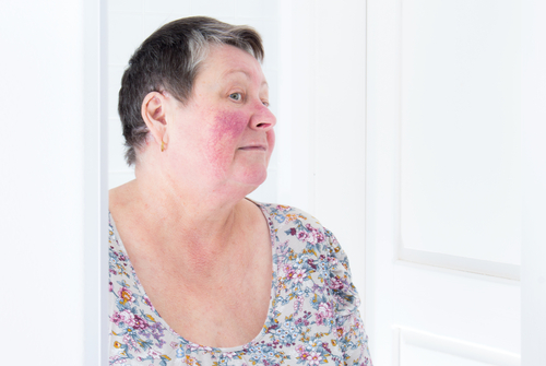 Unhappy elderly woman with skin condition rosacea